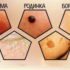 Желатин — природный источник коллагена, который необходим для упругости кожи.Правила приготовления желатиновой маски: Используй обычный пищевой желатин. Заливай его только холодной водой (или молоком, или настоем трав, но обязательно холодным!). Соблюдай пропорцию 1 чайная ложка сухого желатина на 7 чайных ложек жидкости. Дай гранулам набухнуть в течение нескольких часов и убедись, что они перестали увеличиваться […]