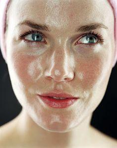 Bendita Intuição: Saiba como eliminar manchas e diminuir  oleosidade...