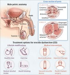 """Erectile dysfunction is a common, treatable medical problem that affects millions of men in the United States.Erectile dysfunction (ED), also referred to as """"im Health Tips, Health And Wellness, Increase Testosterone, Male Infertility, Healthy Groceries, Homeopathic Medicine, Natural Health Remedies, Herbal Remedies, Medical Problems"""