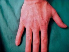 Skin Irritation Caused by Alcohol-Based Hand Rubs