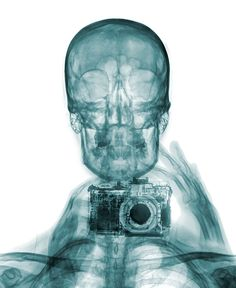 Photo prise aux rayons X - Brendan Fitzpatrick - Selfie