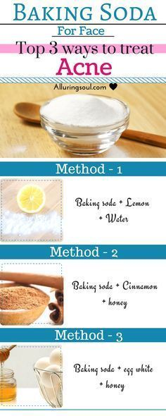 Baking soda for face is the best remedy to treat your hateful acne or pimples and brightens your skin too. Check out the powerful remedies for treating acne with baking soda. Natural Acne Remedies, Home Remedies For Acne, Skin Care Remedies, Pimples Remedies, Homemade Acne Remedies, Overnight Acne Remedies, Pimples Overnight, Acne Mask, Acne Skin