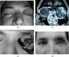 lyposarcoma face and neck imaging - Google Search Google Search, Face, Faces