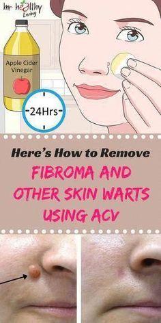 How to Get rid of Warts Naturally #*Food&DessertRecipe* #NaturalHealingHomeRemedies #HowDoYouRemoveWarts #WhatIsTheBestWayToRemoveWarts #WartsOnHands Home Remedies For Warts, Warts Remedy, Herbal Remedies, Cold Remedies, Health Remedies, Wrinkle Remedies, Holistic Remedies, Warts On Hands, Warts On Face