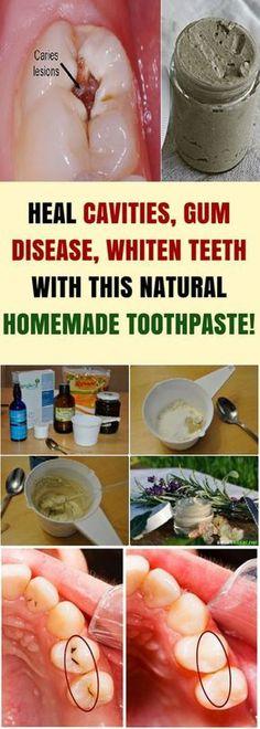 Heal Cavities, Gum Disease, & Whiten Teeth & This Natural Homemade Toothpaste! - Do it Smart Heal Cavities, Gum Disease, & Whiten Teeth & This Natural Homemade Toothpaste! - Do it Smart Teeth Health, Healthy Teeth, Dental Health, Health Heal, Homemade Toothpaste, Natural Toothpaste, Charcoal Toothpaste, Natural Home Remedies, Natural Healing