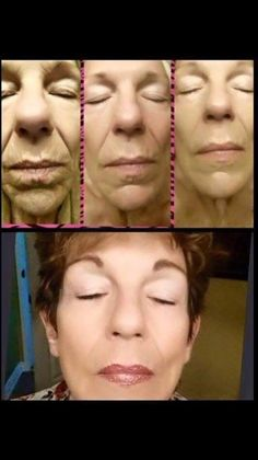 30 days into using the skin care line look at these amazing results
