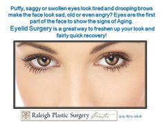 Take years of your look by #EyeSurgery #EyeEnhancement #Bleph