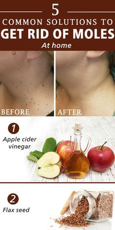 How to get rid of moles at home - Girls Beauty Charm
