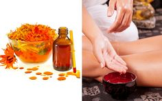 Varicose Veins Remedies 10 Natural Remedies and Exercises to Get Rid of Nasty Varicose Veins - Allergy Remedies, Arthritis Remedies, Headache Remedies, Hair Remedies, Skin Care Remedies, Health Remedies, Toenail Fungus Remedies, Pimples Remedies, Varicose Vein Remedy