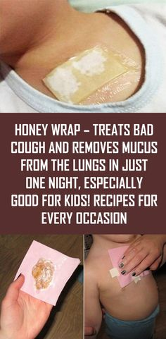 Honey Wrap – Treats Bad Cough and Removes Mucus from the Lungs In Just One Night This magnificent and natural remedy is used in treating colds and it is also used in treating diseases of the respiratory tract. Cough Remedies For Kids, Home Remedy For Cough, Natural Cough Remedies, Cold Home Remedies, Natural Health Remedies, Herbal Remedies, Homemade Cough Remedies, Natural Cures, Natural Remedies