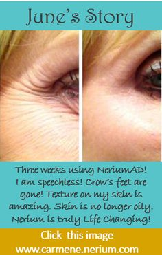CLICK this image to see 1000+ before and after photos by real people and their stories with Nerium. www.carmene.nerium.com