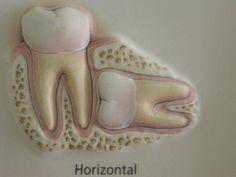 barra lingual ortodoncia - Buscar con Google