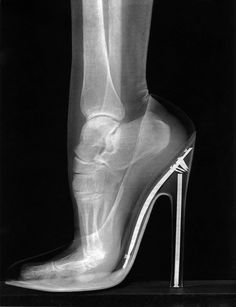 X-ray high heels. Any woman who can wear high heels deserves respect