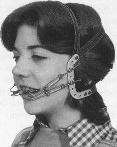 Vintage Braces
