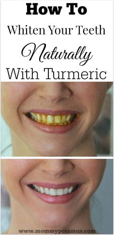 Turmeric Teeth Whitening At Home They say a smile is the prettiest thing you can wear. Turmeric teeth whitening is a surprisingly effective way to naturally whiten your teeth at home. Natural Teeth Whitening, Whitening Kit, Skin Whitening, Tumeric For Teeth Whitening, Tumeric Toothpaste, Homemade Teeth Whitening, Toothpaste Recipe, Tooth Whitener Homemade, Homemade Toothpaste