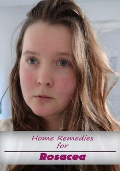 Home Remedies for Rosacea - TechMedisa: