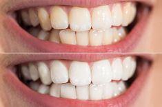 Terwijl whitening kits voor je tanden furore maken op Instagram, onthulde een tandarts zopas zijn geheime recept om je tanden witter te maken.