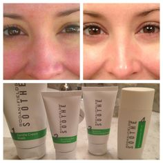 Soothe Regimen for facial redness, psoriasis, roseaca, eczema and sensitive skin. Amazing stuff.