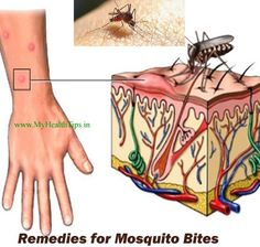 Mosquito Bite Allergy - Skeeter Syndrome is a mosquito bite allergy that results in swelling, blistering and discomfort. Skeeter Syndrome Symptoms, treatment and Skeeter Syndrome Prevention. Mosquito Bite Allergy, Insect Bite Swelling, Bug Bite Relief, Remedies For Mosquito Bites, How To Get Rid Of Gnats, Bites And Stings, Mosquito Control, Insect Bites, Home Remedies