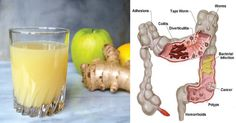Release Pounds of Toxins From Your Body with this Apple Ginger Lemon Colon Cleanse Juice - Digestion - Detox Colon Cleanse Detox, Natural Colon Cleanse, Kidney Cleanse, Cleanse Diet, Bowel Cleanse, Pure Cleanse, Lemon Cleanse, Cleanse Recipes, Health Recipes