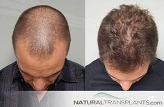 Hair Replacement   Hair Transplant Before and After