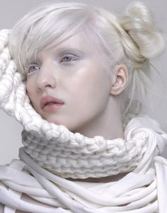 Albino girl. Wow...why do people call them freaks? They're so unique. Every tone of skin is...
