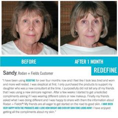 I absolutely love how R+F doesn't discriminate against anything except wrinkles, sun damage & turning back time! ❤️💙