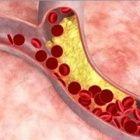Keď očistíte svoje cievy včas a obnovíte zdravie srdca prostrednícvtom ...