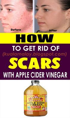 How to Use Apple Cider Vinegar for Scars? health Immaculate and clear skin is the thing that everybody tries to have. With an ideal and clear skin, comes an incredible certainty and magnificence. Our everyday occupied and upsetting routine negative Homemade Pimple Remedies, Sunburn Remedies, Pimples Remedies, Natural Cough Remedies, Cold Remedies, Herbal Remedies, Health Remedies, Bloating Remedies, Arthritis Remedies