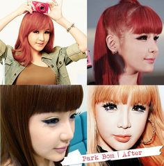 Park Bom Plastic Surgery Before After