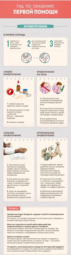 First Aid Basics for Bleeding - 43 Usefull Hiking Tips and Tricks seasonal symptoms health health natural remedies aid Survival Guide, Survival Skills, First Aid Tips, First Aid For Kids, Basic First Aid, Emergency First Aid, Emergency Bag, Emergency Preparation, After Life