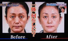 Cold Face, Coconut Benefits, Face Exercises, Kids Hands, Do You Know What, Look In The Mirror, Revolutionaries, Body Care, Massage