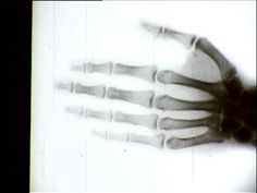 Röntgenfilm IV / X-Ray Film IV on Vimeo