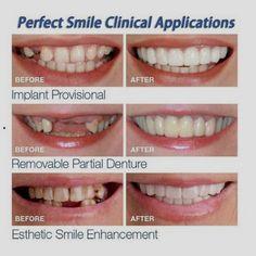 Snap On Smile - Clip On Veneers Instant Smile In Seconds – Instant Snap Smile - The Perfect Smile In Minutes Perfect Smile Teeth, Snap On Smile, Veneers Teeth, Crooked Teeth, Teeth Braces, Stained Teeth, Natural Teeth Whitening, Cosmetic Dentistry, Dental Implants