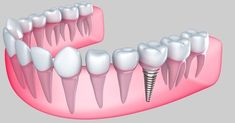 The easy and simple definition of dental implant is a replacement for teeth roots. Dental implants Melbourne is referred to as fixtures that are used as a replacement of the root of the affected tooth. They can be removable or fixed depending on the suitability of patient and medical professional. Such implants are surgically placed into the jawbone and covered with a crown or cap.