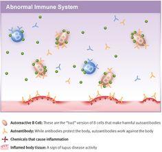 Abnormal Immune System
