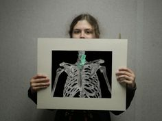 Resplendency Revealed: There's a Frog in My Throat! - X Ray Project