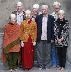 The World's Largest Family of Albinos live in India