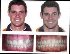 Braces Before And After Adult Orthodontics