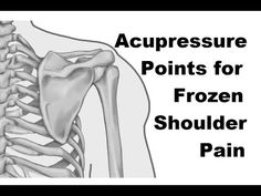 Acupuncture For Pain Relief Acupresure Points for Frozen Shoulder Pain - Massage Monday Frozen Shoulder Pain, Frozen Shoulder Exercises, Frozen Shoulder Treatment, Shoulder Workout, Shoulder Stretches, Acupressure Therapy, Acupressure Treatment, Acupressure Points, Acupressure Massage