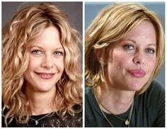 Meg Ryan Plastic Surgery Before and After Facelift photo view Meg Ryan Plastic Surgery Before and After Facelift and Botox Extreme Plastic Surgery, Bad Plastic Surgeries, Plastic Surgery Gone Wrong, Plastic Surgery Photos, Celebrity Plastic Surgery, Meg Ryan, Celebrities Before And After, Celebrities Then And Now, Elective Surgery
