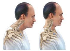 Text Neck pain is caused by the strain placed on the neck and upper back due to texting while looking down. Chiropractic Care relieves pain by correcting the misalignments in the neck. Bad Neck Posture, Posture Fix, Fitness Workouts, Easy Workouts, Workout Routines, Scoliosis Exercises, Posture Exercises, Aerobic Exercises, Neck And Back Pain