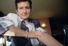 27-Denise Holstein, sobrevivente do holocausto, mostra a tatuagem utilizada como identificação quando foi prisioneira no campo de concentração de Auschwitz.