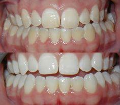 Kovács Veronika blogja | Hogyan sikerült kifehérítenem a fogaimat