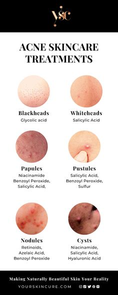 Skin Care Treatments, Face Treatments For Acne, Best Acne Treatment, Types Of Acne, Skin Care Routine Steps, Skin Clinic, Skin Care Remedies, Healthy Skin Care, Face Skin Care