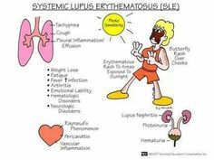 SLE- chronic inflammatory/autoimmune  disease caused by presence of a persistent antigen