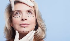 Eye lift and eyelid surgery facts - Anti-ageing advice Plastic And Reconstructive Surgery, Plastic Surgery, Aesthetic Clinic, Eyelid Surgery, Beauty And The Best, Mommy Makeover, Facial Rejuvenation, Eye Lift, Les Rides
