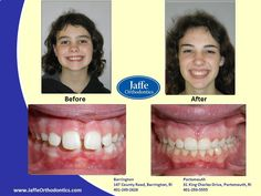 Morgan Orthodontics, Portsmouth, King Charles, Photos, Pictures, Cake Smash Pictures