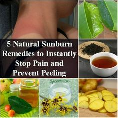 5 Natural Sunburn Relief Remedies To Instantly Stop Pain & Prevent Peeling - Homestead & Survival Natural Sunburn Relief, Natural Remedies For Sunburn, Sunburn Remedies, Herbal Remedies, Health Remedies, Natural Cures, Health And Beauty Tips, Health Tips, Health And Wellness