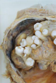 [Teratoma: teeth growing in a womb] 'YOUR CORPSE IS BEAUTIFUL XCIII' By Mia-Jane Harris
